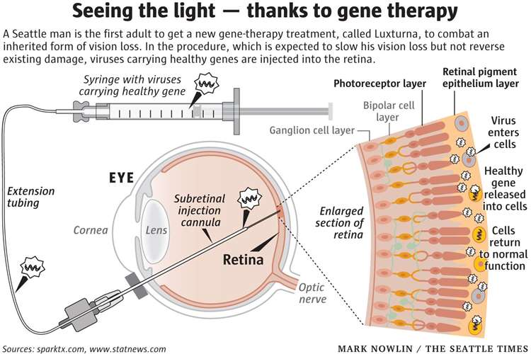 How Luxturna, a gene therapy from Spark Therapeutics, works (12992879)