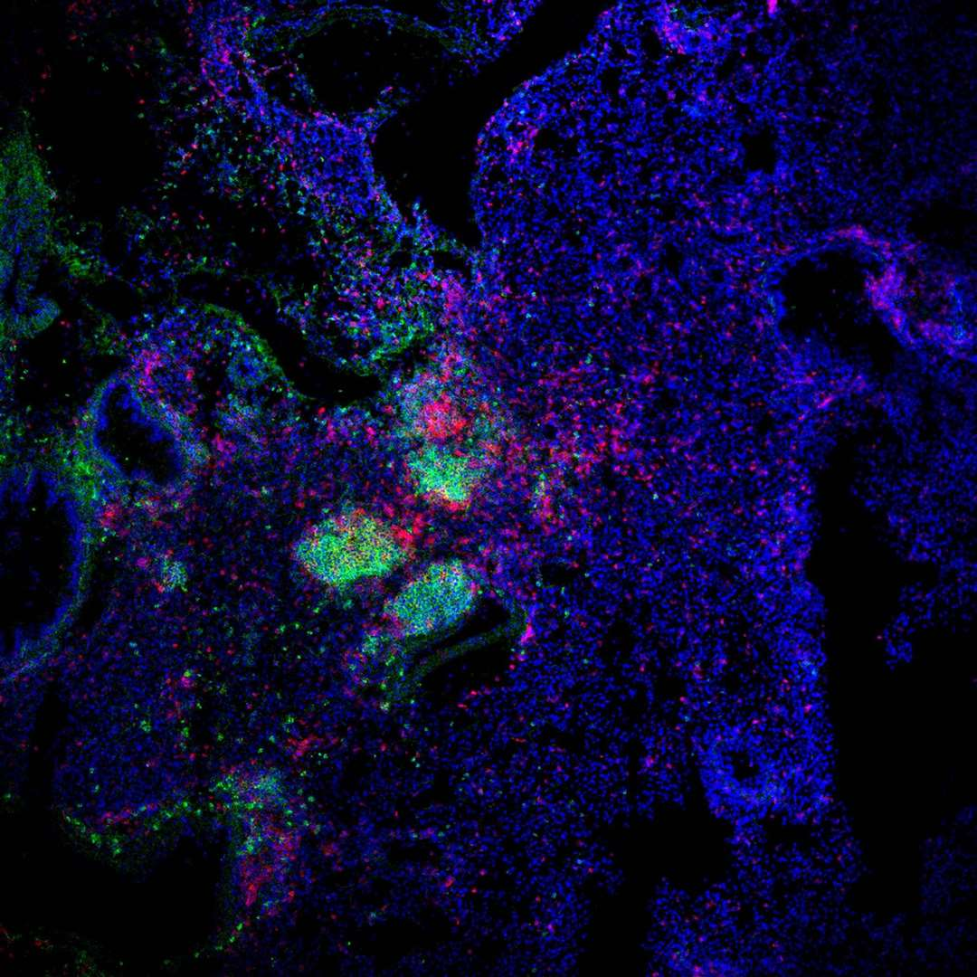 Mouse lung (in blue) 14 days after influenza A infection with ectopic lymphoid structures identified by the presence of high numbers of B cells (in green) and T cells (in pink). Microscopy: Dr Alice Denton, Babraham Institute (7776142)